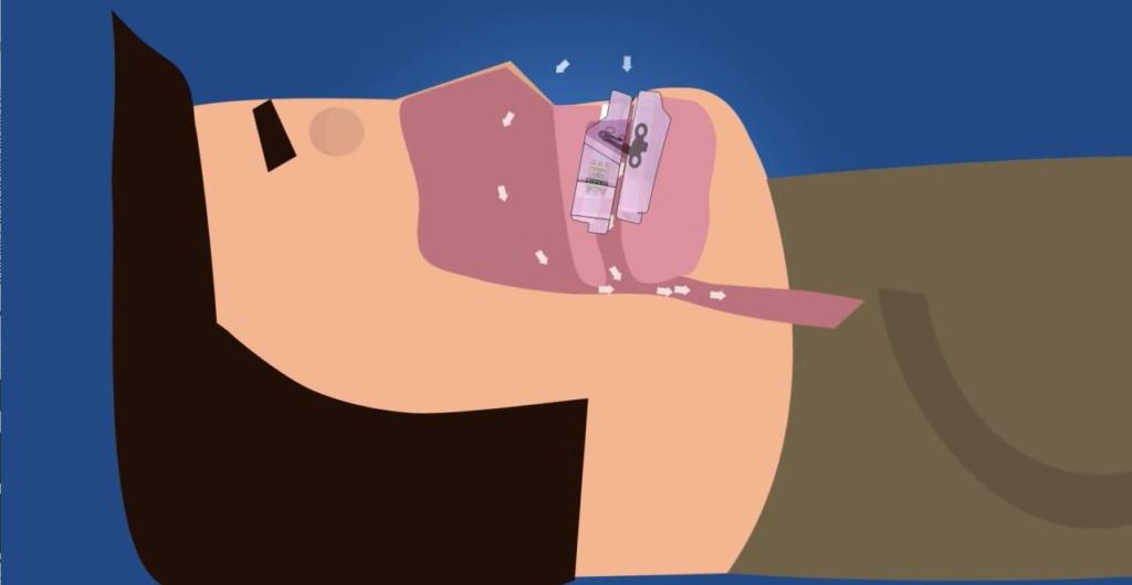dispositivo-avance-mandibular