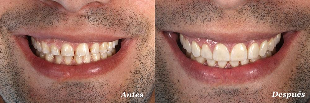 estetica-dental-valladolid