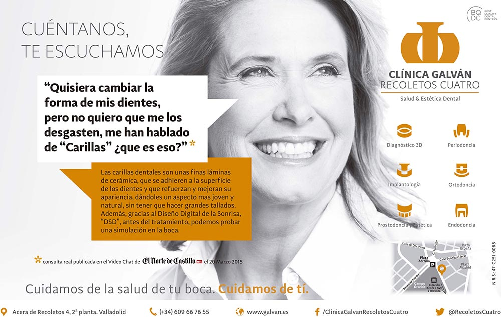 Carillas dentales_Clinica Galvan Recoletos Cuatro