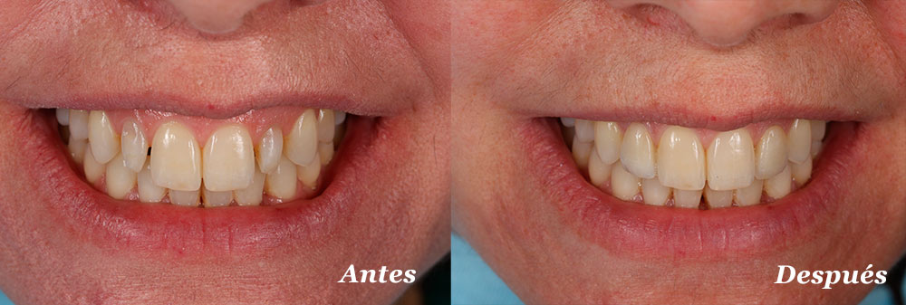 fundas-dentales-valladolid