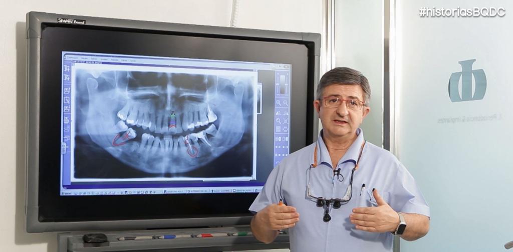 galvan-implantes-dentales